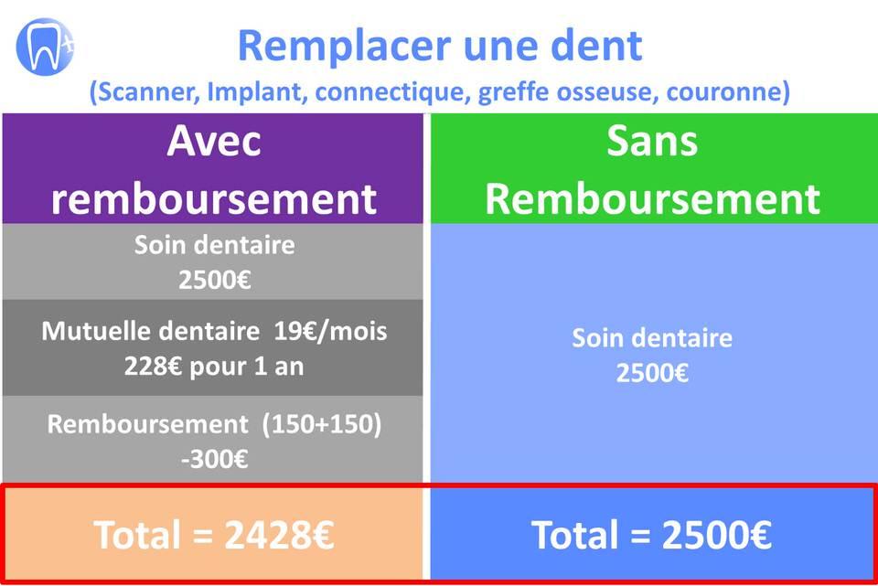 implant dentaire tarif et remboursement